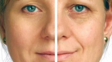 Microdermabrasion – Watch A Treatment