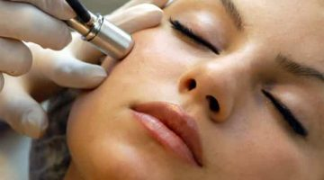 How Microdermabrasion Treatments Work