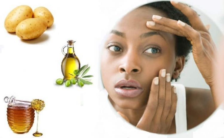 5 Masks To Get Rid Of Dark Circles Under Your Eyes 3
