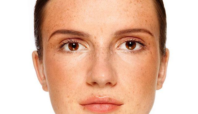Homemade face mask for Skin Pigmentation